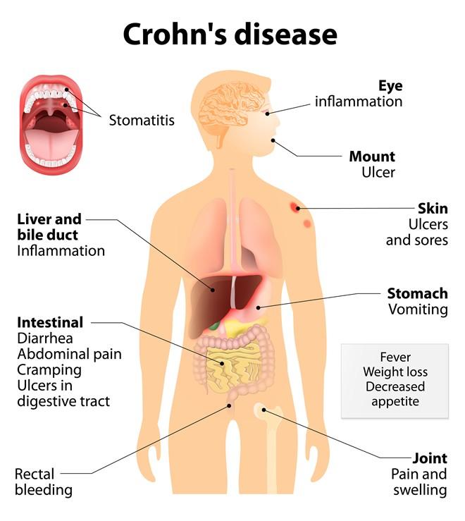 Crohn's Disease Treatment London