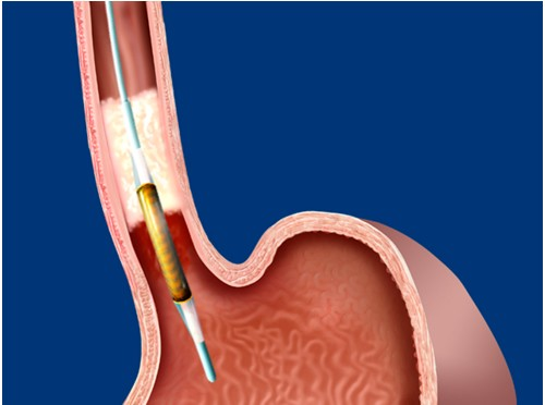 HALO Radiofrequency Ablation (RFA) London
