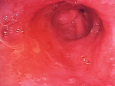 Barret's oesophagus