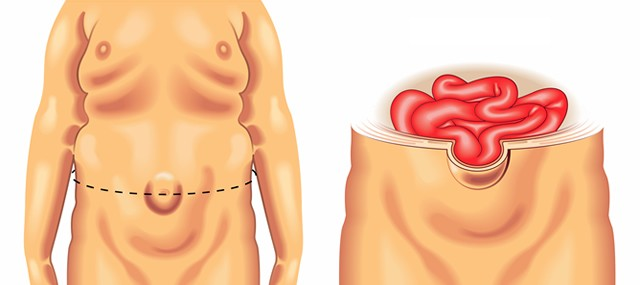 Abdominal Wall Hernias Treatment London