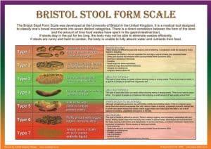 Bristol Stool Scale | Stool Diary - London Gastroenterology