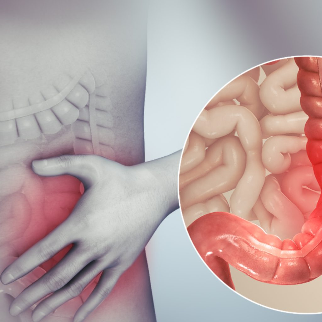 3D medical animation still showing Irritable bowel syndrome and tenesmus in the pip.